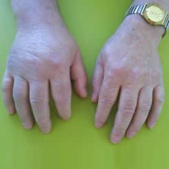 Gicht und Rheuma