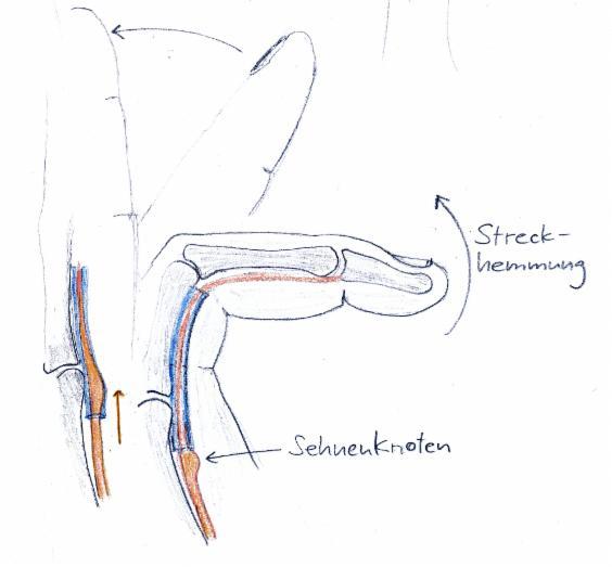 Der Schnappfinger | Zentrum für Handchirurgie Nürnberg