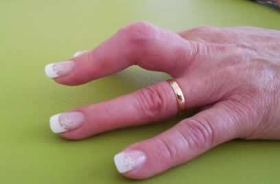 Wie lange krank fingerkuppe abgeschnitten Versorgung von